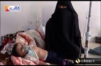 عدم توجه سازمان ملل در کشتار کودکان یمن