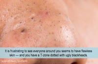 آموزش از بین بردن جوش های سیاه و سفید بینی