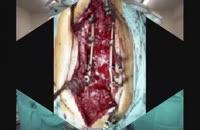 علل کمردردهای بهبود نیافته بعد از جراحی و درمان آن
